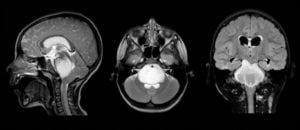 DIPG brain